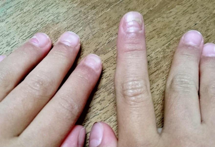 爪の異常の原因は手足口病の後遺症