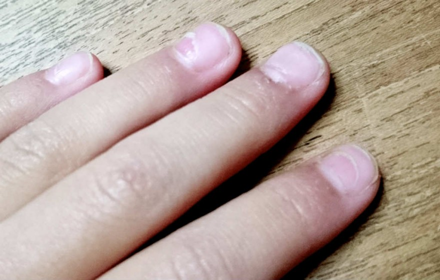 手足口病の後遺症で爪が剥がれた