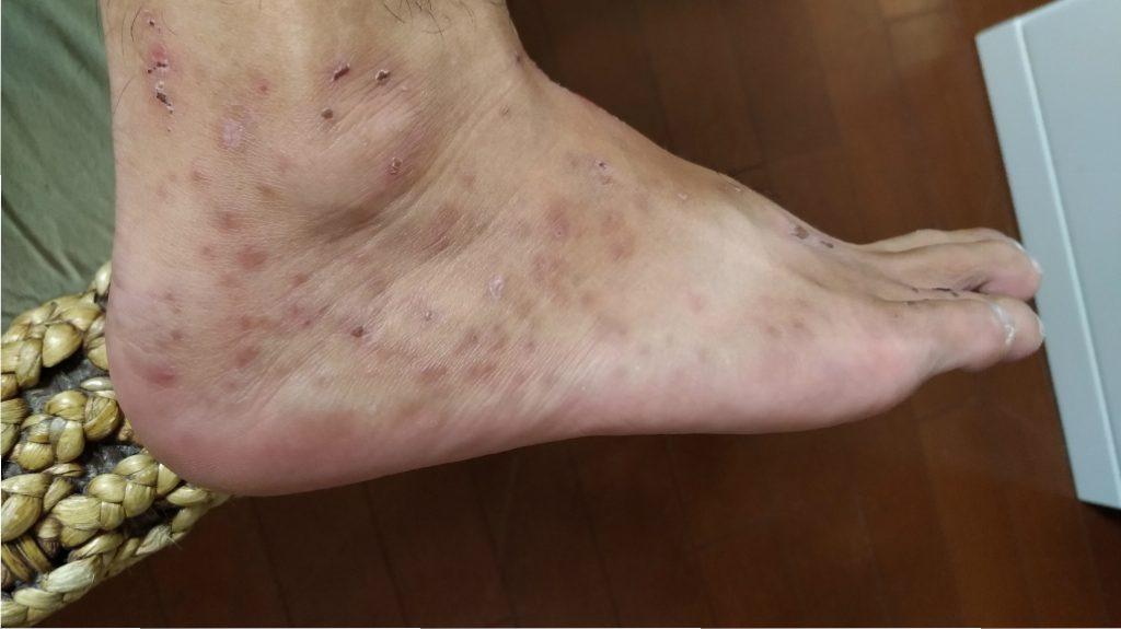 夏の海に行って足が痒い人はヌカカという虫に刺されてます